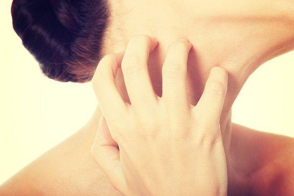 脖子為什麼會長痘痘?破解女性最容易冒痘的4大原因