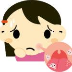 嘴巴又破洞?!釐清好發原因與6招正確治療法